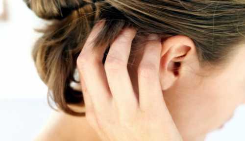 Псориаз волосистой части головы лечение