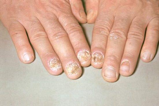 псориаз ногтей лечение
