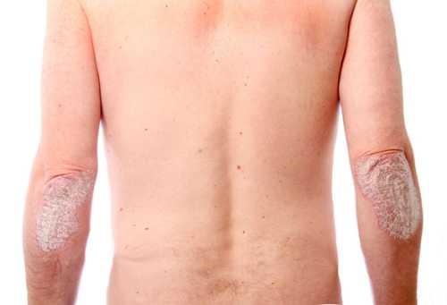 пустулезный псориаз экссудативный псориаз артропатический псориаз