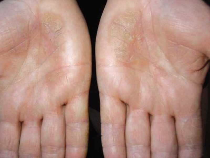 Симптомы отравления алкалоидами аконита
