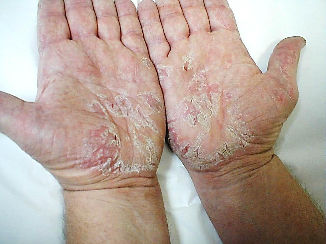 аллергия на клей для ресниц рунейл