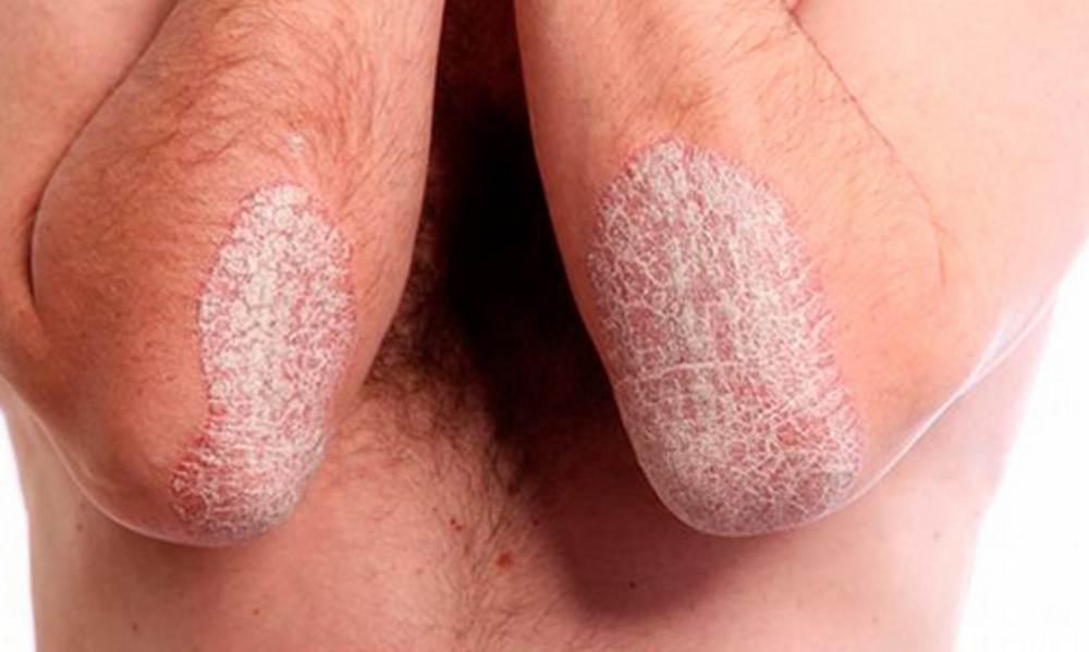 Болит мочевой пузырь симптомы чем лечить