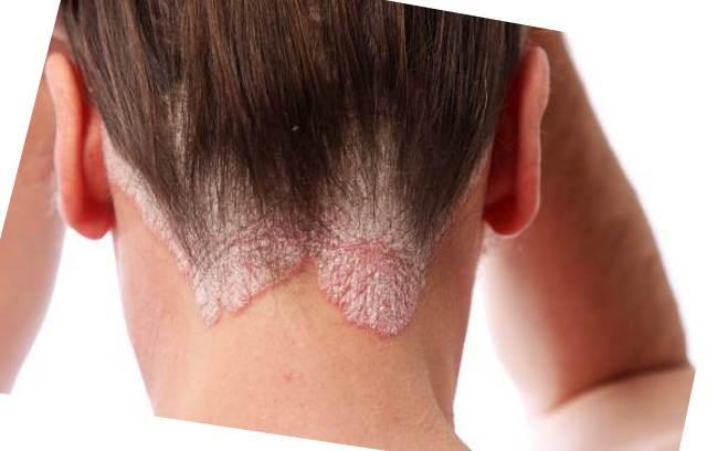 Как лечить псориаз на голове фото