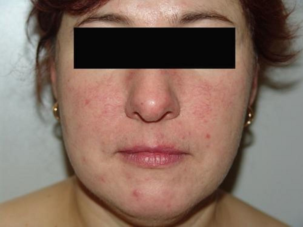 Признаки псориаза на лица фото