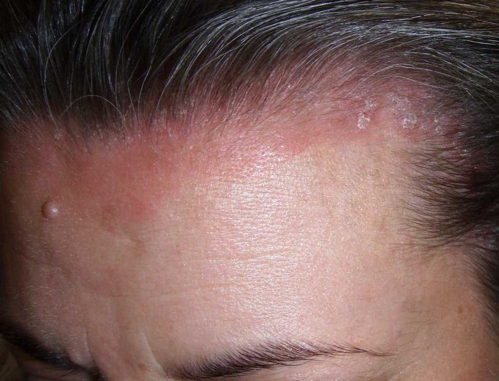 Псориаз на голове фото 5