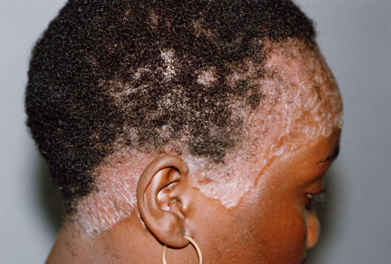 Псориаз на голове фото 6