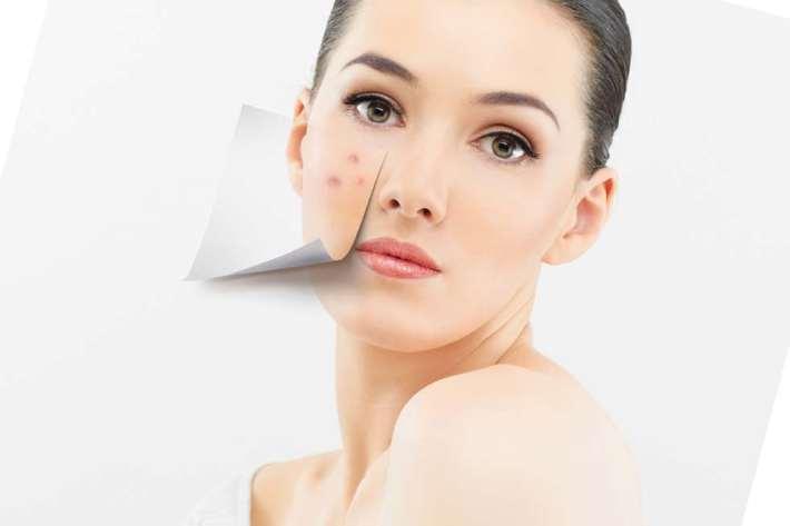 Псориаз на лице лечение фото