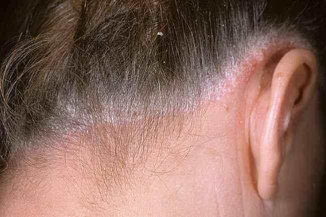 Чем опасен псориаз на голове