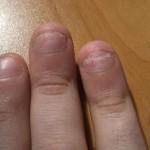 Псориаз на ногтях лечение