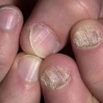 Псориаз на ногтях фото