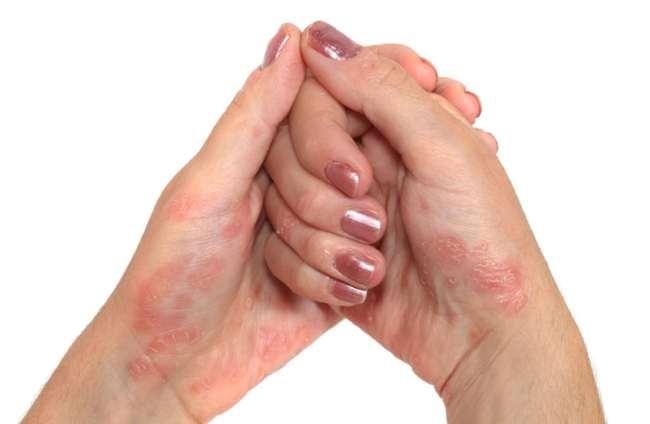 Лечение псориаза ногтей фото причины симптомы лечение народные средства