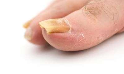 Медицина средство от грибка ногтей на ногах