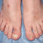 Псориаз ногтей на ногах лечение 1