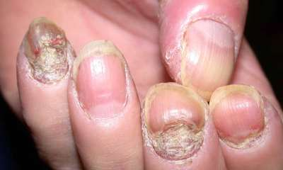 Псориаз ногтей: фото, симптомы и лечение
