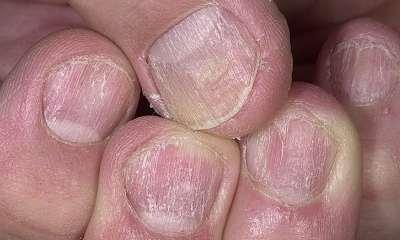 Псориаз ногтей пальцев рук фото 0
