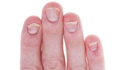 Псориаз ногтей фото 0