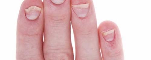 Фото и симптомы псориаза, лечение псориаза в домашних условиях ...