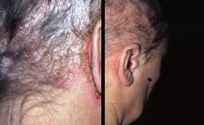 Псориаз волосистой части головы лечение препараты