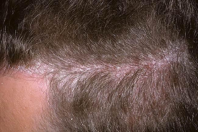 Псориаз волосистой части головы фото начальная стадия