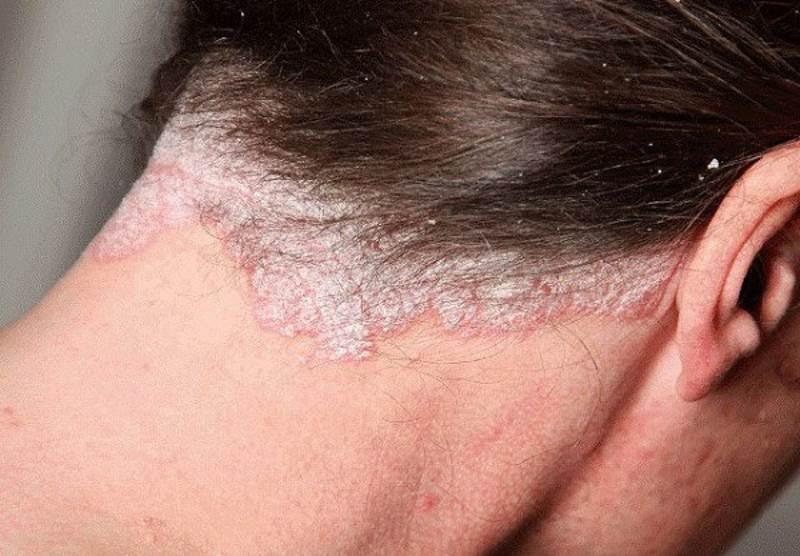 Псориаз волосистой части головы фото 3