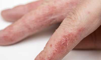 Лечение псориаза на руках и ногах