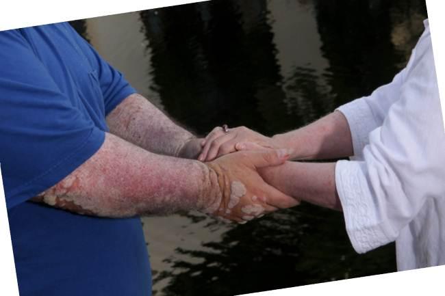 Псориаз на руках лечение фото