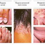 Виды псориаза и их лечение