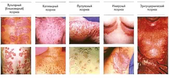 Виды псориаза фото и лечение