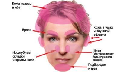 Лечение псориаза в крыму отзывы