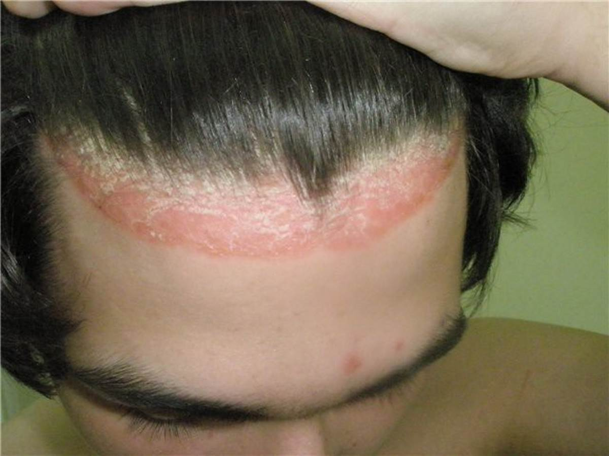 Себорейный псориаз волосистой части головы фото 2