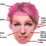 Себорейный псориаз или себорейный дерматит