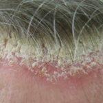 Себорейный псориаз на голове фото