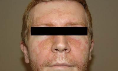 Себорейный псориаз на лице фото