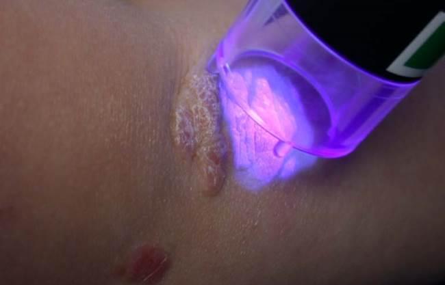 Дермалайт 80 отзывы по лечению псориаза