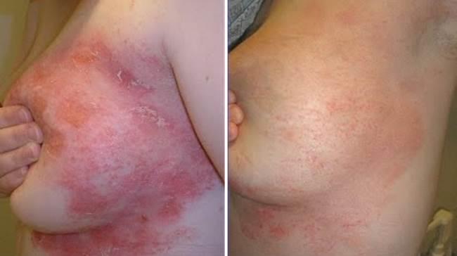Солярий при лечении псориаза фото