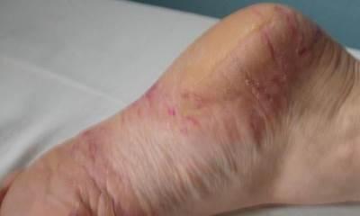 Псориаз на стопах ног фото 0