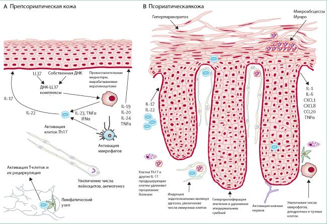 Дифференциальная диагностика псориаза