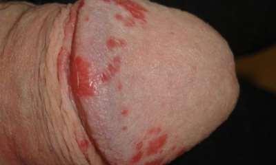 Псориаз на мужских гениталиях фото