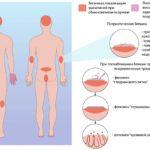 Симптомы и первые признаки псориаза фото