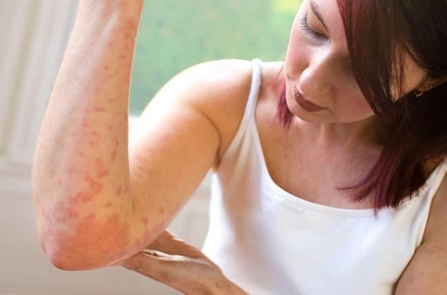Уход за кожей при псориазе. Кожные болезни