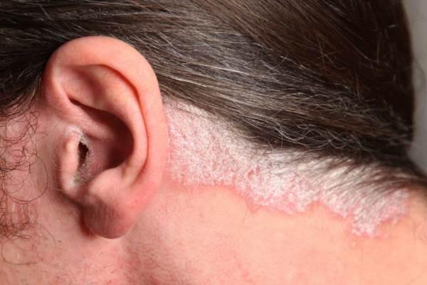 Псориаз за ухом фото