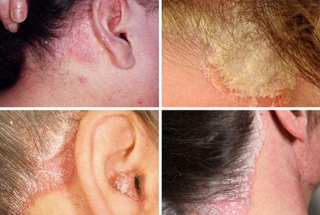 Симптомы и стадии недуга
