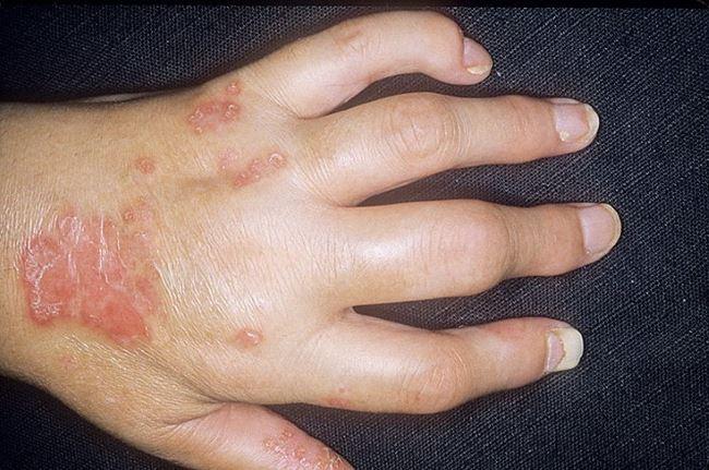 Псориаз суставы симптомы как восстановить быстро разрушающийся хрящ в суставе