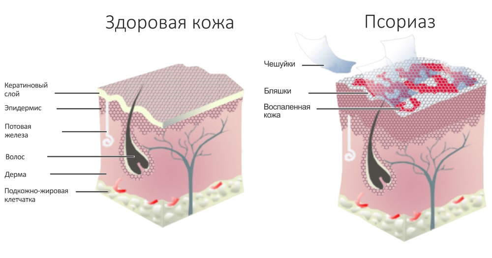 Как лечить псориаз мазь